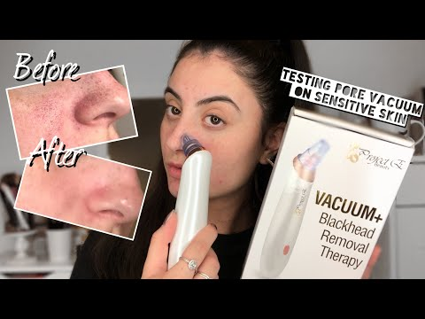 Testing Vacuum Blackhead Remover On Sensitive Skin   Project E Beauty Vacuum Blackhead Extractor  Butterfly Beauty Bliss Products Price List