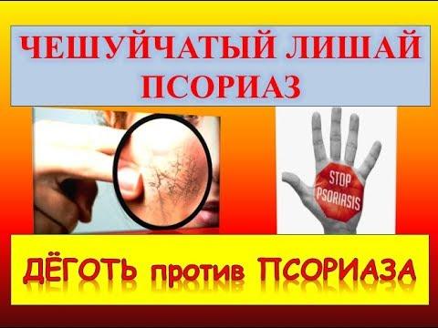Псориаз (чешуйчатый лишай): лечение народными средствами