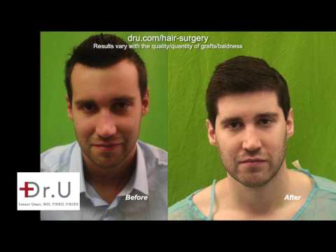 Best FUE Hairline Transplant In Los Angeles For Forehead Reduction Using Dr UGraft
