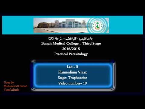 19- Practical Parasitology - Plasmodium Vivax - Trophozoite Stage