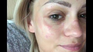 RITORNO, con la faccia bruciata. (Tutto il racconto) | AlicelikeAudrey