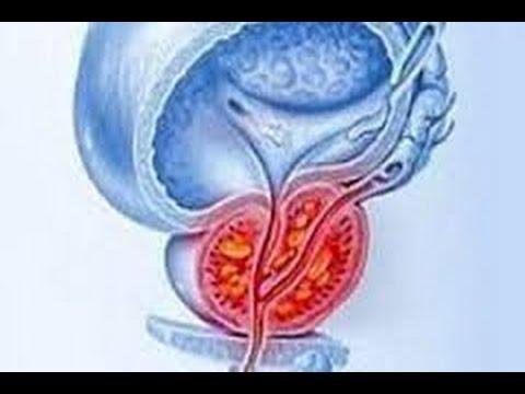 Хронический застойный простатита как лечить