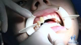 """Лазерное отбеливание зубов в Стоматологии """"Наша Семья"""" (Ярославль)"""