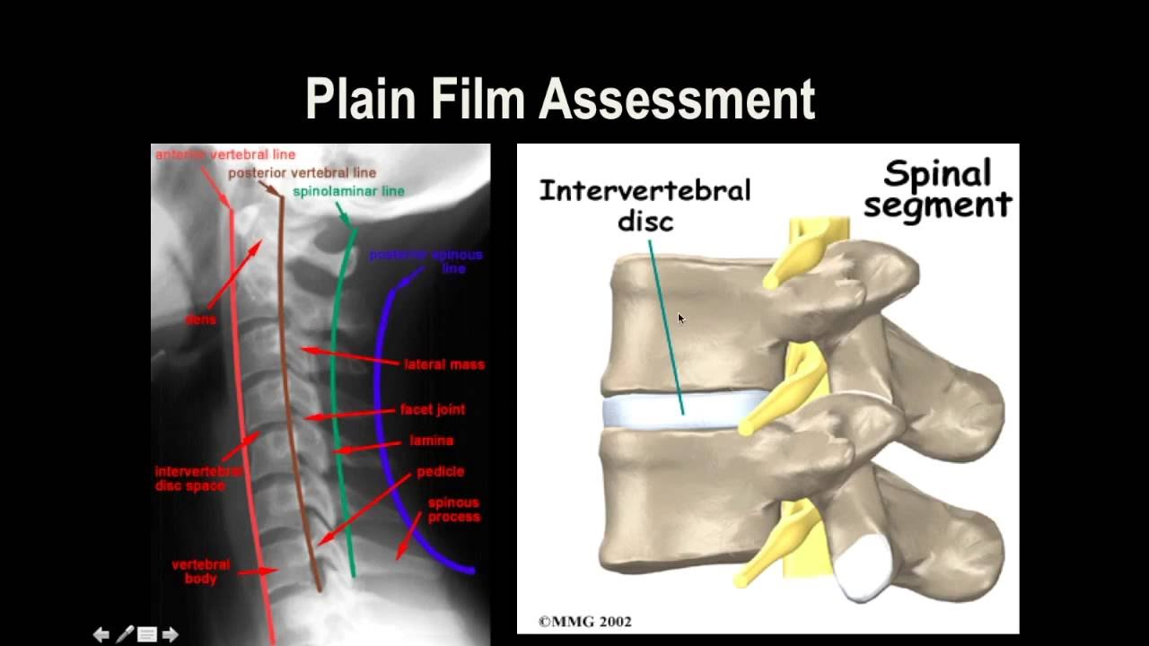 Cervical Spine X-Ray - YouTube