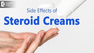 What happens if you use too much steroid cream? - Dr. Urmila Nischal