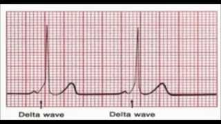 In your EKG, How to Identify Delta wave in WPW, What Is