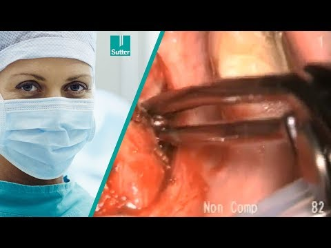 Tonsillectomy using To-BiTE™ non-stick bipolar clamp I Peter Tolsdorff, M.D.