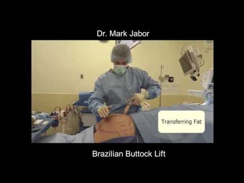 Dr. Mark Jabor - Brazilian Buttock Lift in El Paso, TX