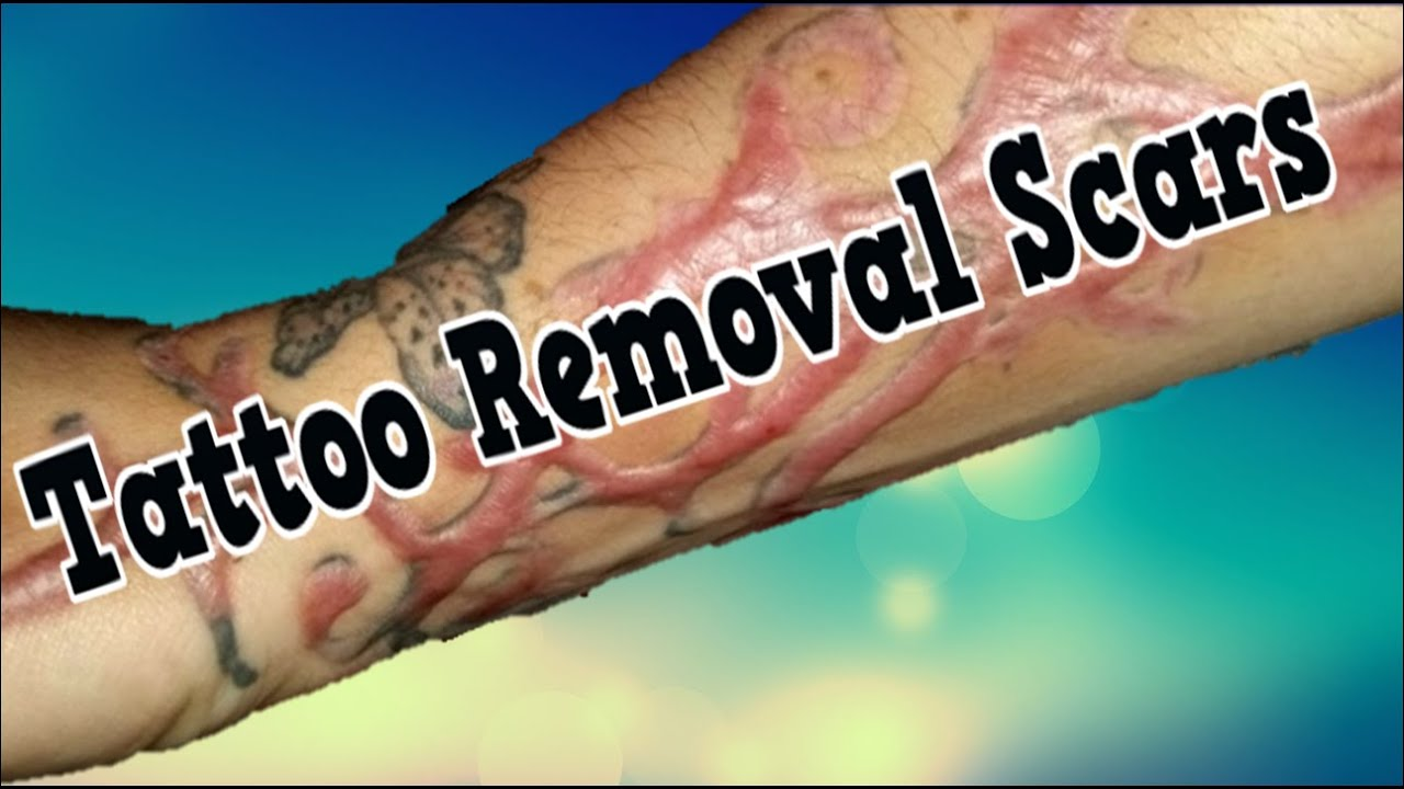 Tattoo Removal Scars, Can You Remove Tattoos, How To ...