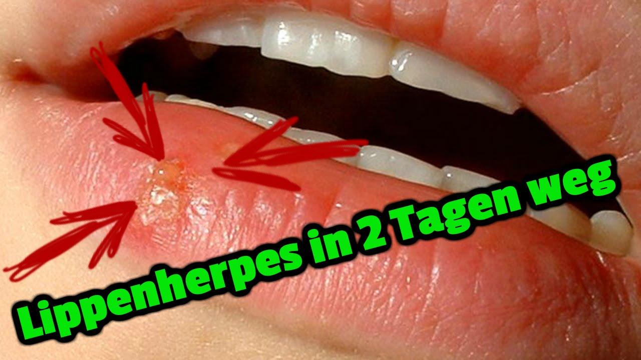 Lippenherpes in 2 Tagen weg - YouTube
