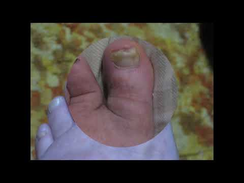 Toenail Fungus after Several Months Using Coconut Oil
