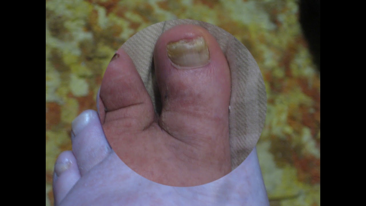 Toenail Fungus after Several Months