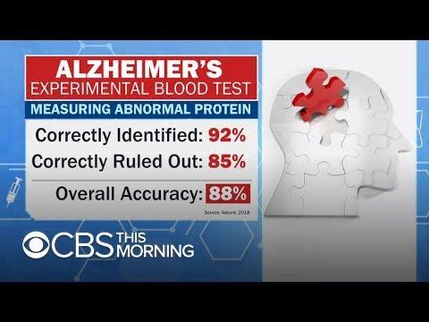 Researchers report progress toward Alzheimer's blood test