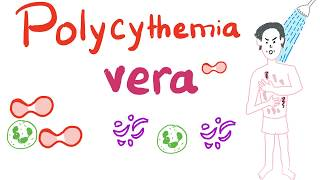 Polycythemia vera - causes, symptoms, diagnosis, treatment, pathology.