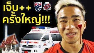 ชนาธิปเจ็บครั้งใหญ่!!! +เจ็บนาน อดช่วยทีมชาติไทย เล่นบอลโลก 2022 แล้ว(จริงหรือ)