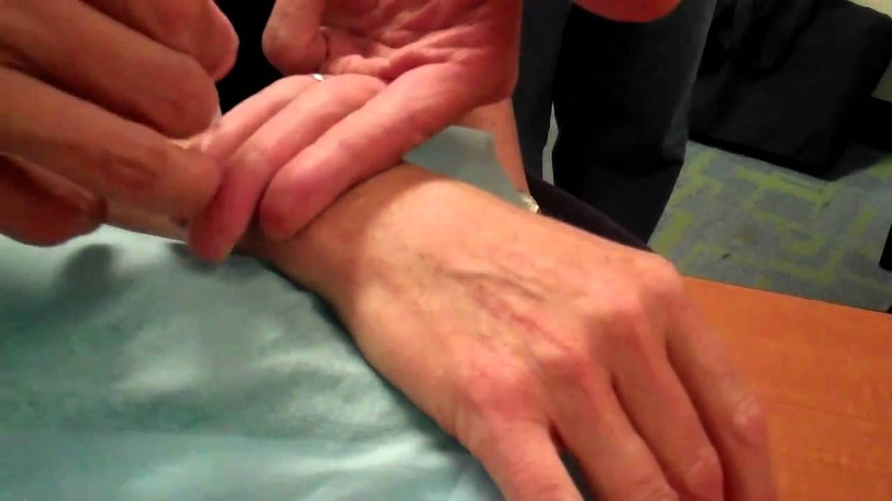Acupuncture Point Demonstration - TW 5 - McMaster University