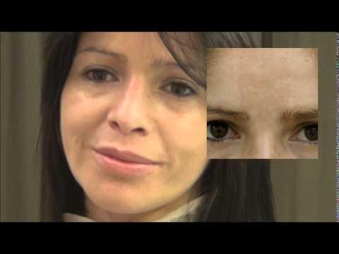 Melasma, tratamiento láser