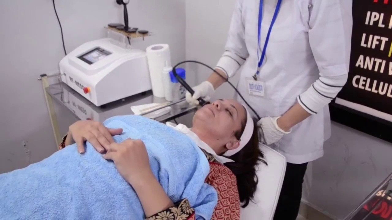 Laser Hair Removal In Lahore Getting Permanent Hair Removal Solution Bodevolution Youtube