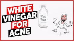hqdefault - White Vinegar Cures Acne