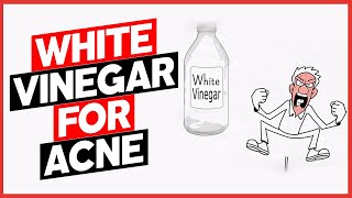 White Vinegar for Acne