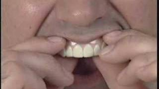Imako Cosmetic Teeth® Fitting Instructions(How to fit the Imako Cosmetic Teeth® in your own kitchen. No dental visit necessary., 2008-05-30T20:15:55.000Z)