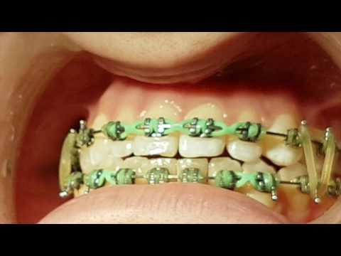 Flossing around Orthodontic Brackets | Dentist Lethbridge | Cool Dental