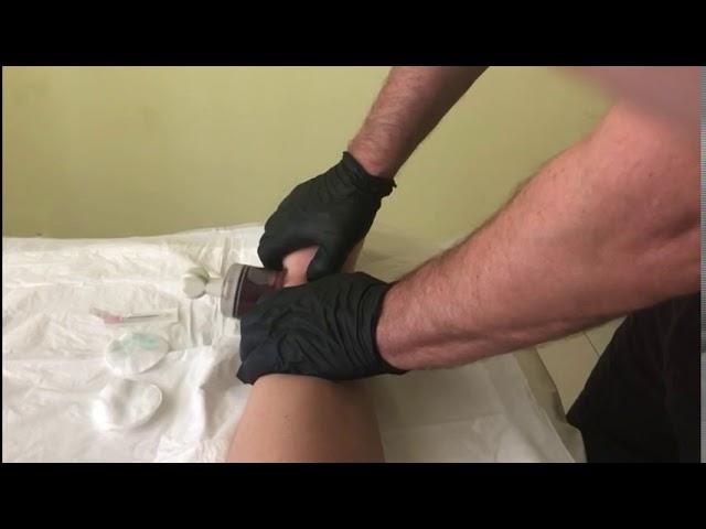 Артроз, чистка суставов, связок, костей, сухожилий и перезапуск костного мозга