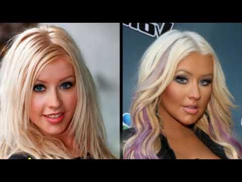 49 Celebrities Before and After Plastic Surgery