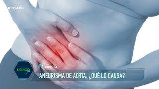 XII 38  Aneurisma de aorta (terapéutica endovascular) | Dr. M. Cerezo.