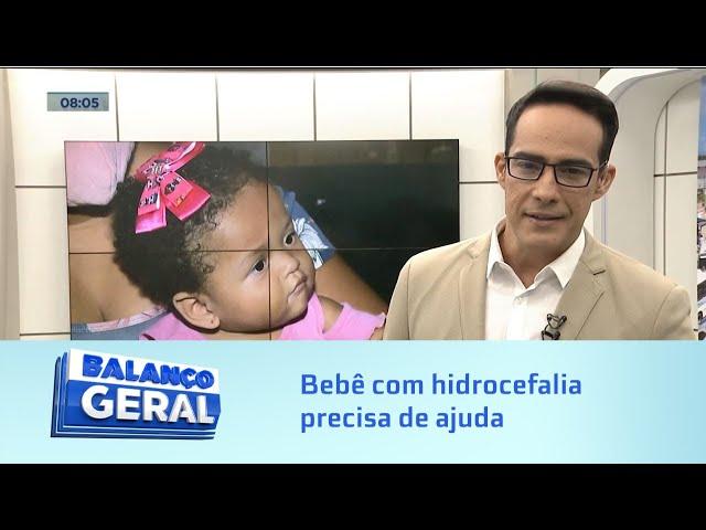 Exames caros: Bebê com hidrocefalia precisa de ajuda para fazer ressonância do cérebro