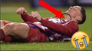 הפציעות הכי כואבות ומפחידות בהיסטוריה של הכדורגל (מצמרר)