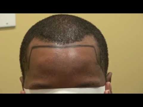 black-man-receding-temple-hair-loss-transplant-dr.-diep-www.mhtaclinic.com-los-gatos