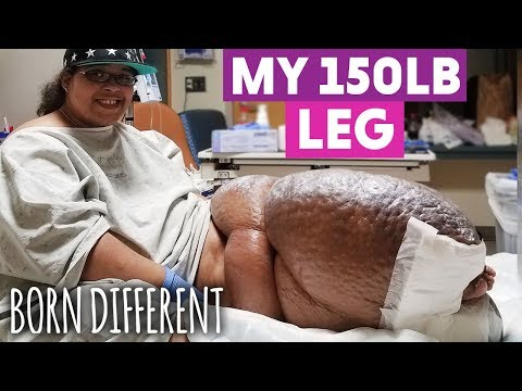 the-woman-with-the-150lb-leg-|-born-different