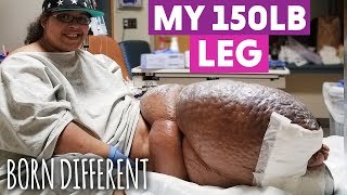 The Woman With The 150lb Leg | BORN DIFFERENT