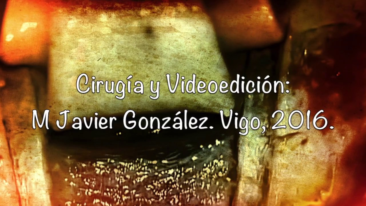 Anatomia quirurgica III 1 - YouTube