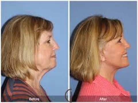 facial-rejuvenation.cosmetic-surgery.lower-face-lift.neck-lift-surgery.facelift-without-surgery