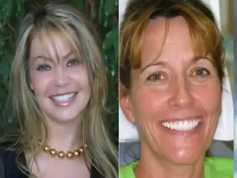 dental-implants-vs-denture