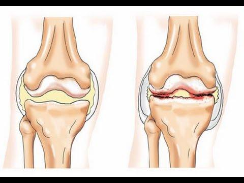 Отложение солей в суставах колени водочный компресс коленный сустав