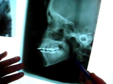 radiografia craneo odonto unfv - YouTube