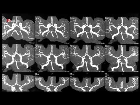 Mysteriöse Krankheiten - Unfassbare Entdeckungen Dokumentation 2014