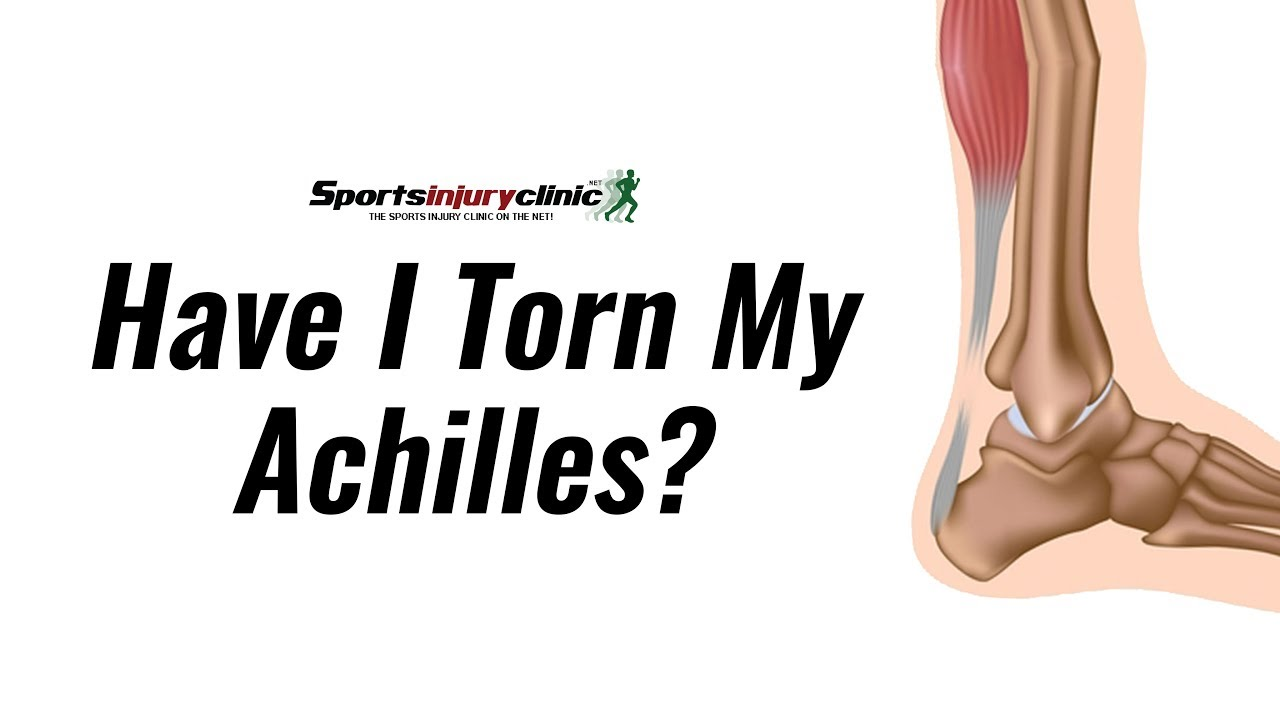 Have I Torn My Achilles Tendon Thompsons Test Explained Youtube