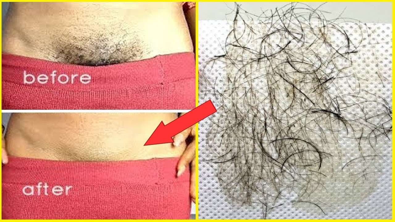 In Just 5 Minutes Remove Pubic Hair Permanently No Shave -4276