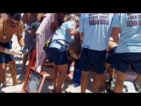 Shark Attacks Miami Beach Area Swimmer