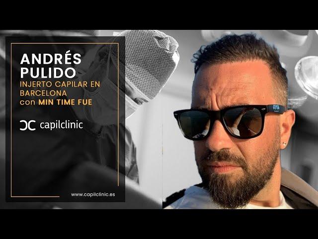 ¿ Como ha ido mi injerto capilar con Capilclinic ?