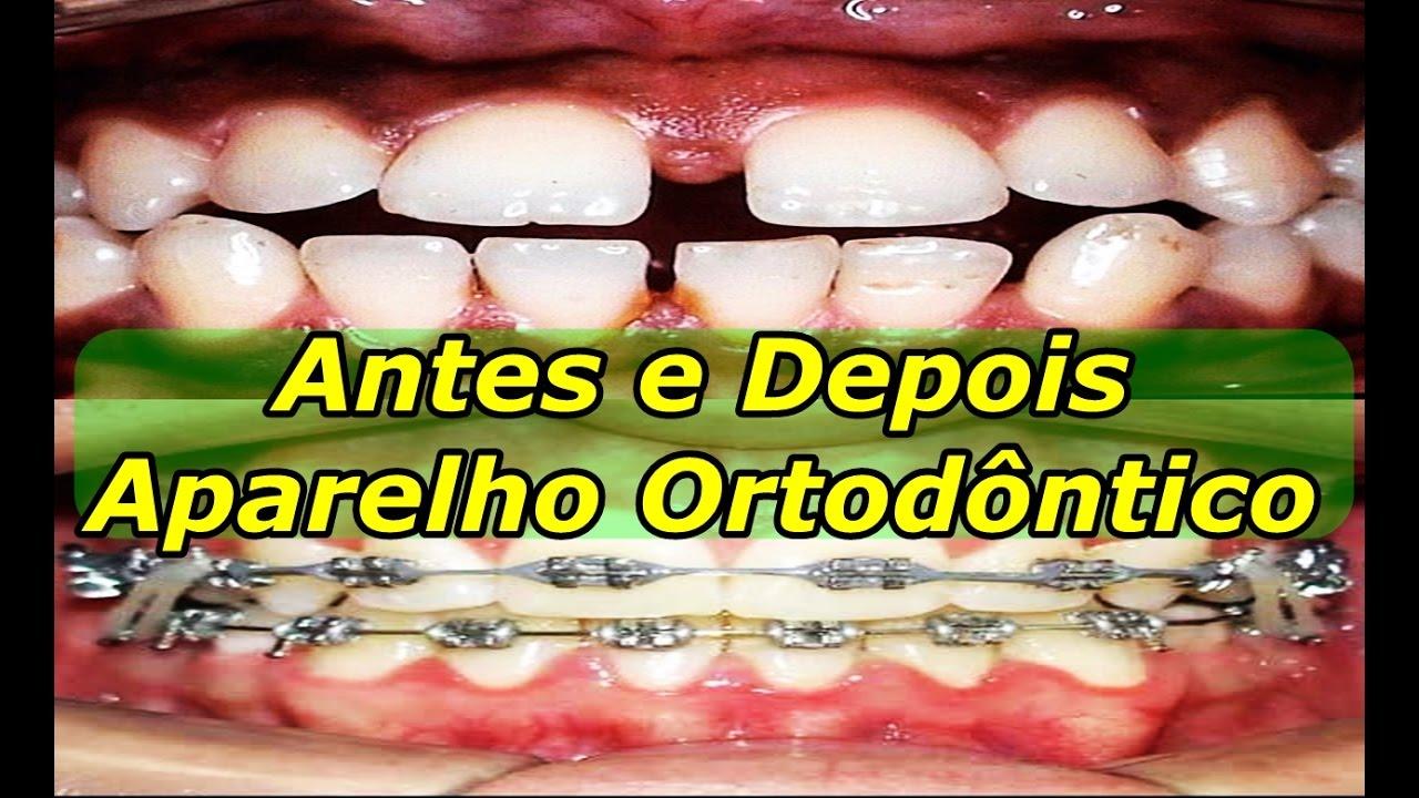 Aparelho Ortodontico Antes E Depois Dentes Separados Youtube