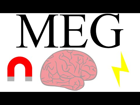 Magnetoencephalography: measuring brain activity with magnetism