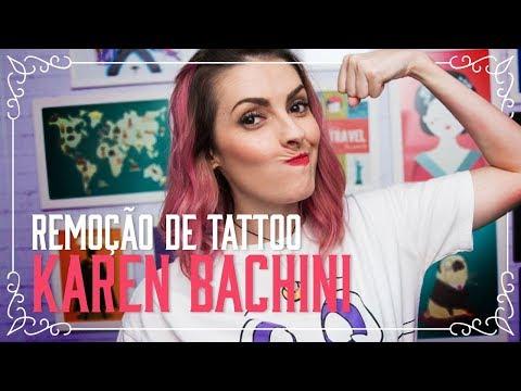 Remoção de Tattoo da Karen Bachini no Tattoo You