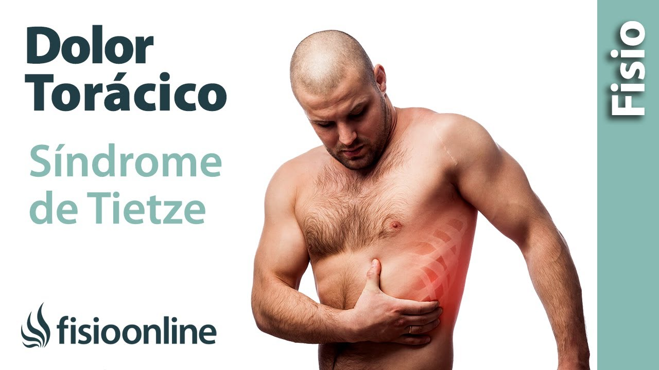 Qué es el síndrome de Tietze y su tratamiento (o síndrome ...