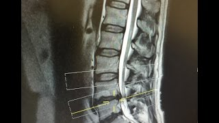 Day After L4 L5 Microdiscectomy Lumbar Back Surgery Slipped Herniated Disc