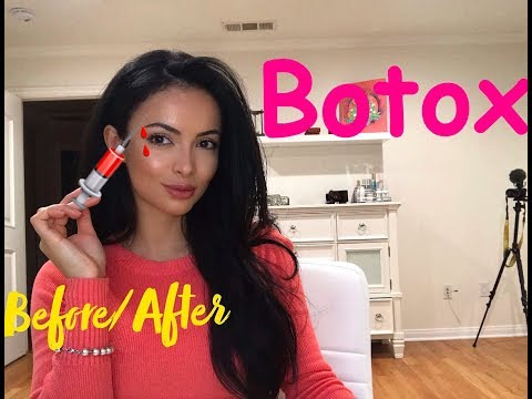Botox Before And After Eyebrow Lift Youtube